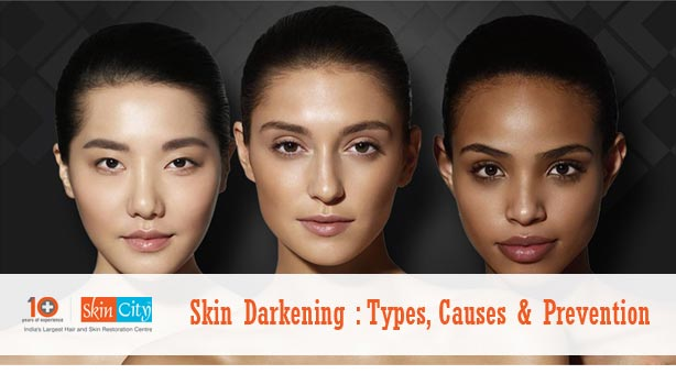 Skin Darkening Types Causes Prevention