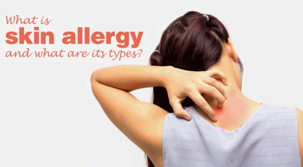 What-Is-Skin-Allergy