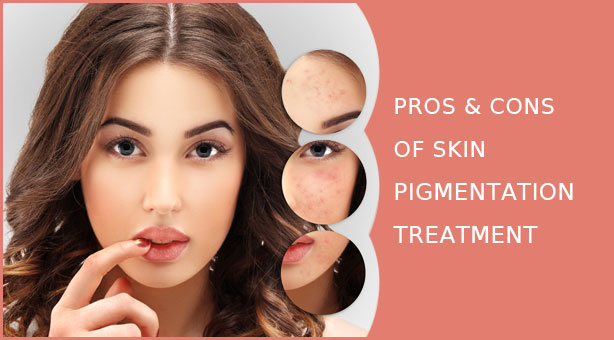 What Are The Pros and Cons -  Pigmentation Treatment
