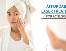 Affordable Laser Treatment for Acne Scars Treatment