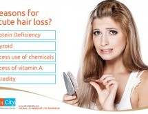 Hair Loss: The Causes, the Impact and its Treatment