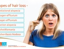 Understanding the Types of Hair Loss: Check your Symptoms!