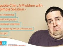 Double Chin – A Problem with a Simple Solution