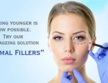Antiageing solutions: Fillers
