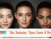 Skin Darkening: Types, Causes & Prevention