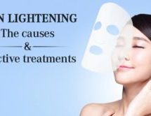 Skin Lightening: The Causes and Effective Treatments