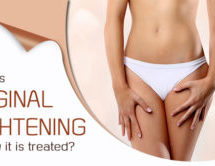 What Is Vaginal Tightening And How It Is Treated?