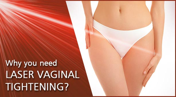 Why you need laser vaginal tightening