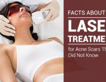 4 Facts About Laser Treatment for Acne Scars That You Did Not Know