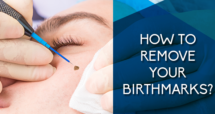 How to Remove Your Birthmarks?