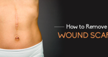 How to Remove Wound Scars