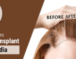 How Much Does a Hair Transplant Cost in India?