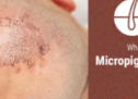 What is Scalp Micropigmentation? All You Need To Know About Treatment, Side Effects & Cost