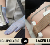 Cryogenic Lipolysis Vs Laser Lipolysis: A Complete Breakdown