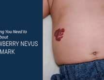 Strawberry Nevus Birthmark: Everything You Need to Know About