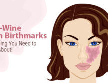 Port-Wine Stain Birthmarks: Everything You Need to Know About
