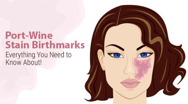 Port-Wine Stain Birthmarks - All You Need To Know