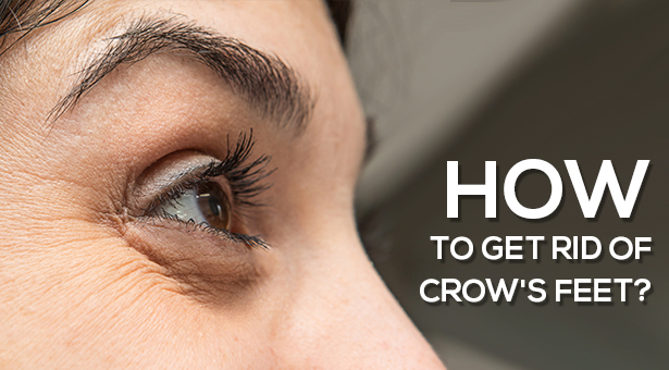 How to Get Rid of Crow's Feet?