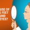 The Cause of Crows Feet Around Your Eyes?
