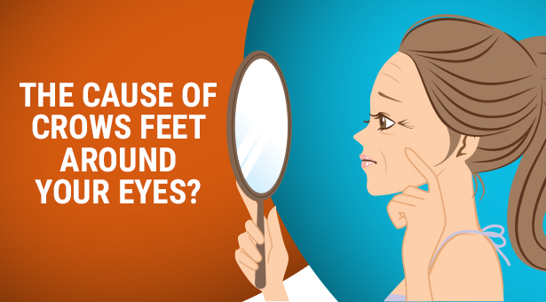 Cause of Crows Feet