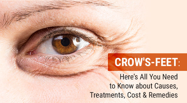 Crow's Feet: Here's All You Need To Know About Causes, Treatments, Cost & Remedies