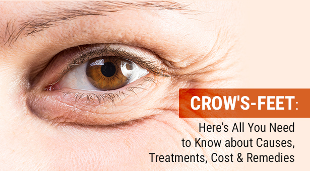 What is Crows Feet