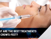 What are The Best Treatments for Crow's-feet?