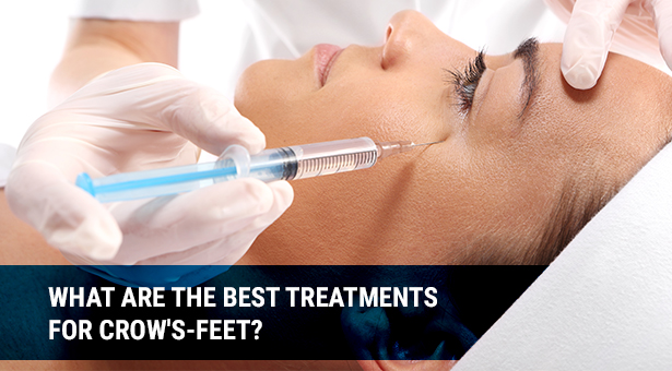 What are The Best Treatments for Crows feet