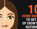 10 Home Remedies To Get Rid of Crow's Feet Naturally