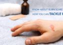 Know About Burn Scars And How You Can Tackle It