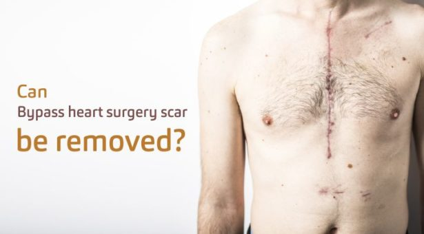 Can Bypass Heart Surgery Scar Be Removed?
