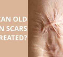 Can Old Burn Scars Be Treated?