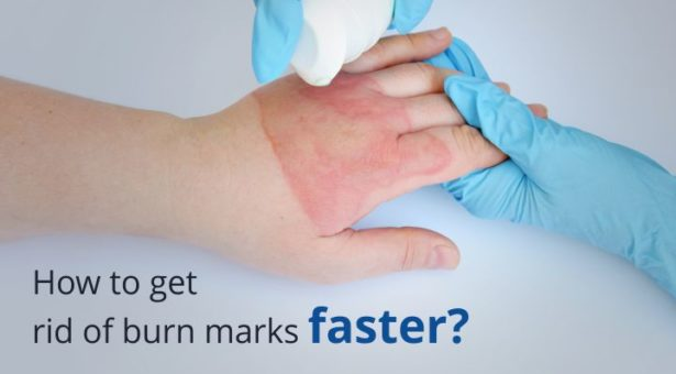 How To Get Rid Of Burn Marks Faster?