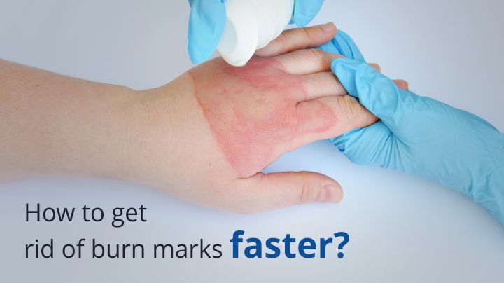 Get Rid of Burn Marks Faster