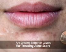 Are Creams Better or Lasers For Treating Acne Scars?