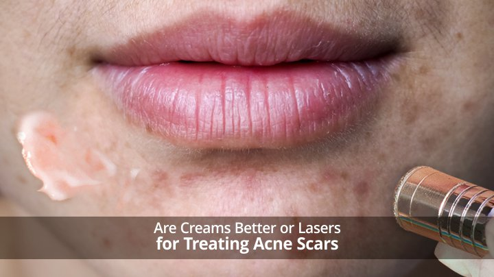 Are Creams Better or Lasers For Treating Acne Scars