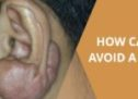 How To Avoid A Keloid?