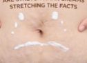 Are Stretch Mark Creams Stretching The Facts?