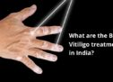 What are the Best Vitiligo treatments in India?
