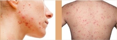 ACNE Breakouts Appear On the Body