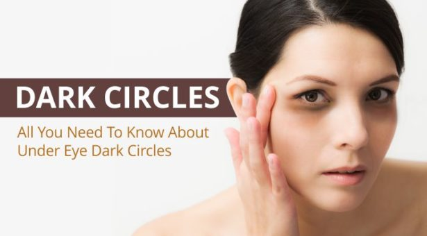Dark Circles: All You Need To Know About Under Eye Dark Circles