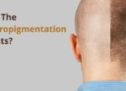 What Are The Scalp Micro pigmentation Side Effects?