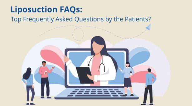 Liposuction FAQs: Top Frequently Asked Questions by the Patients
