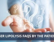 Laser Lipolysis FAQS By The Patients