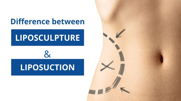 Difference Between Liposculpture And Liposuction