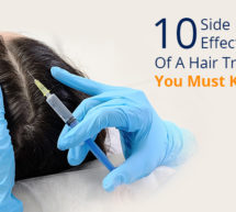 10 Side Effects of Hair Transplant You Must Know