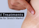 Best Stretch Marks Medical Treatments