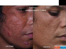 Acne Scar Ultrapulse Laser Treatment