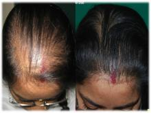 PRP for Female Pattern Alopecia FPB