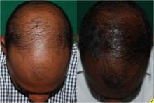 PRP for Male Pattern Baldness
